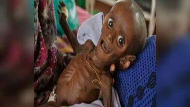 Photo of मध्यप्रदेश में कुपोषण से लड़ने के लिए 1495 करोड़ का बजट, फिर भी 70 हजार बच्चे गंभीर कुपोषित, अब आएगी नई पोषण नीति