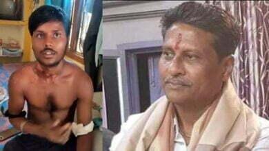 Photo of विरोध को गेंहू के बोरे, और FiR से दबाने की कोशिश ? विधायक पति पर, घायल छात्र के गंभीर आरोप